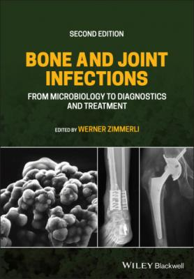 Bone and Joint Infections - Группа авторов